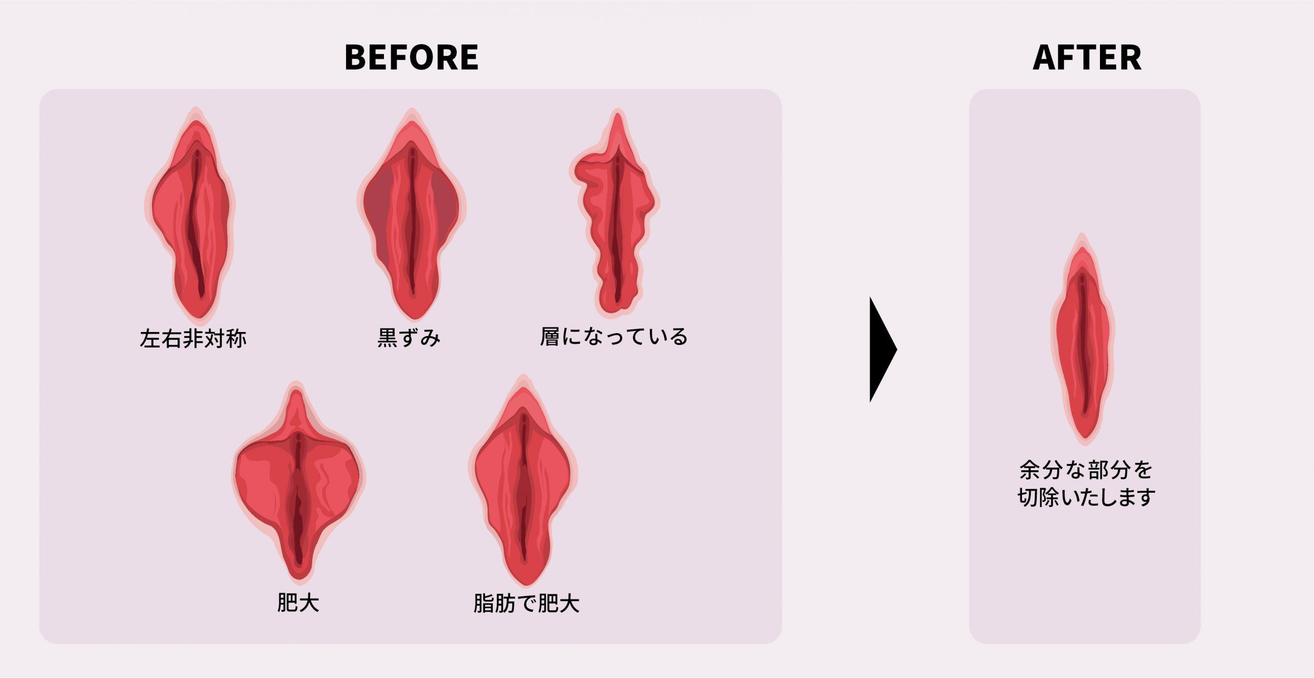 小陰唇縮小 画像
